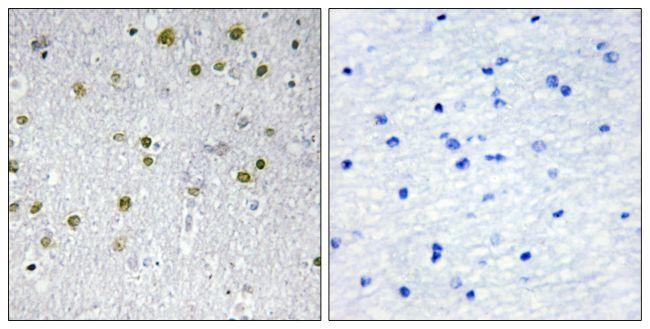 NRIP2 Antibody (PA5-38775)