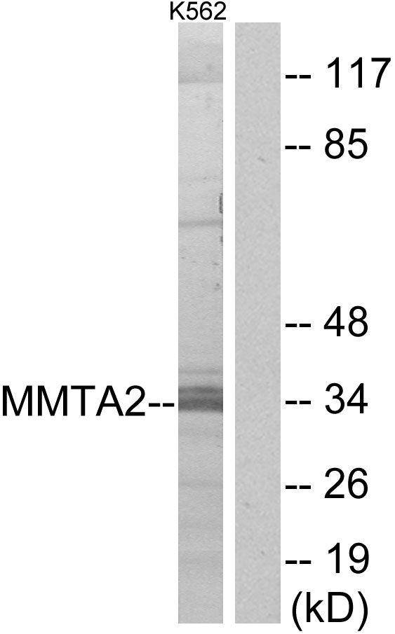 MMTAG2 Antibody (PA5-38776) in Western Blot