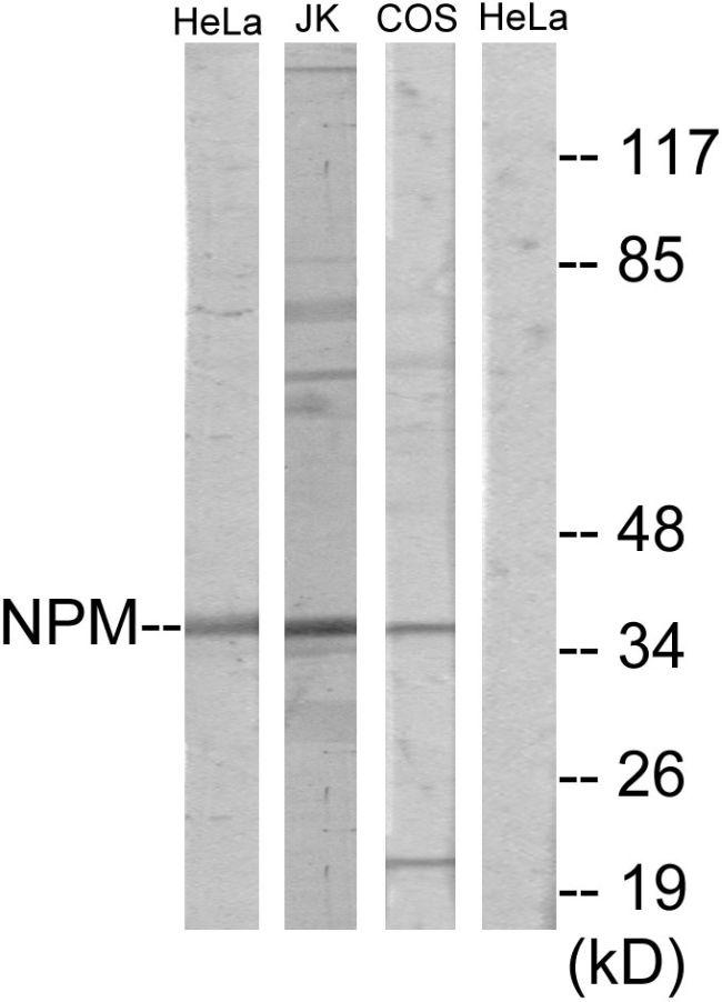 NPM1 Antibody (PA5-38779) in Western Blot