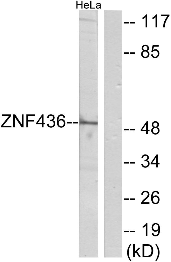 ZNF436 Antibody (PA5-38784)