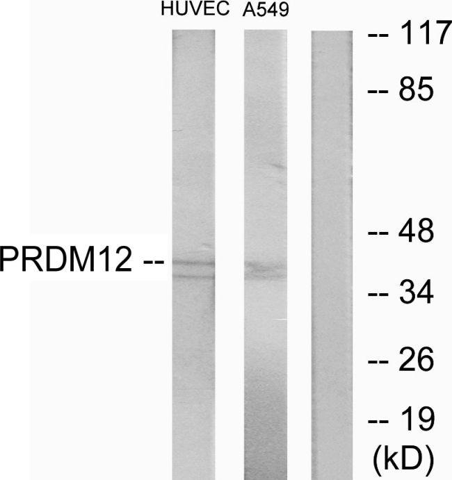 PRDM12 Antibody (PA5-38793) in Western Blot