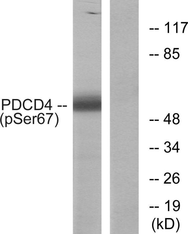 Phospho-PDCD4 (Ser67) Antibody (PA5-38802)