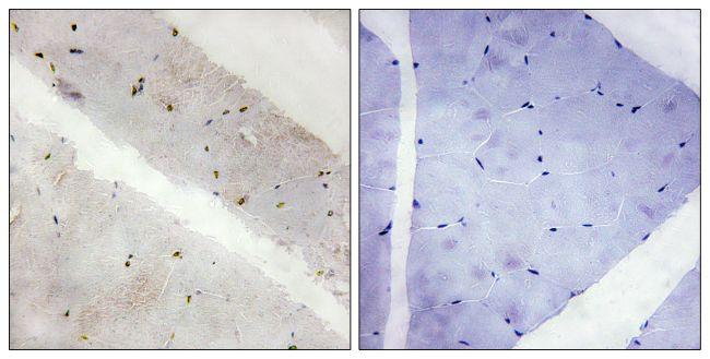 LATS2 Antibody (PA5-38804) in Immunohistochemistry (Paraffin)