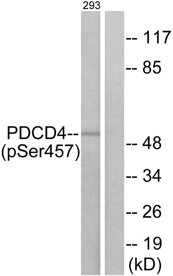 Phospho-PDCD4 (Ser457) Antibody (PA5-38806) in Western Blot