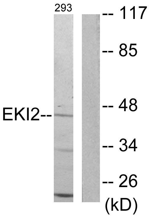 ETNK2 Antibody (PA5-38807) in Western Blot