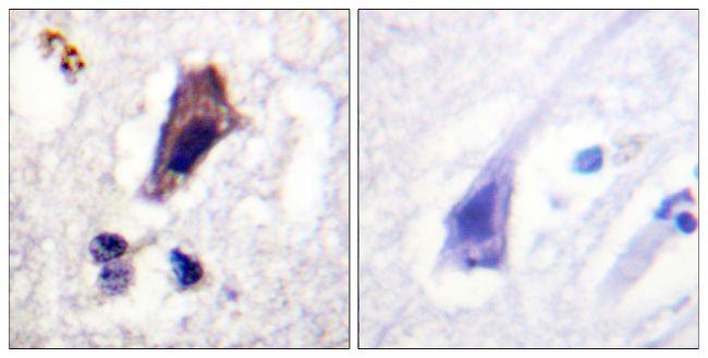 Phospho-PIKFYVE (Ser307) Antibody (PA5-38808) in Immunohistochemistry (Paraffin)