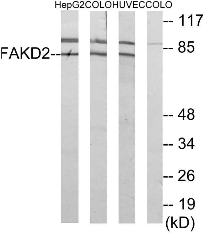 FASTKD2 Antibody (PA5-38810)