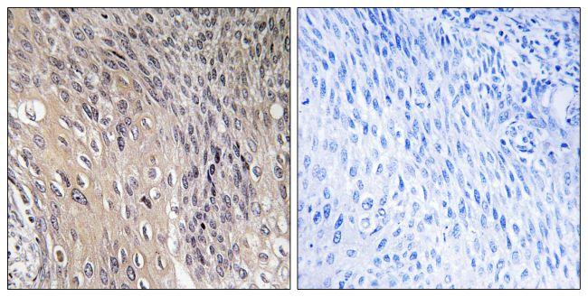 Phospho-RhoGDI (Ser174) Antibody (PA5-38827) in Immunohistochemistry (Paraffin)