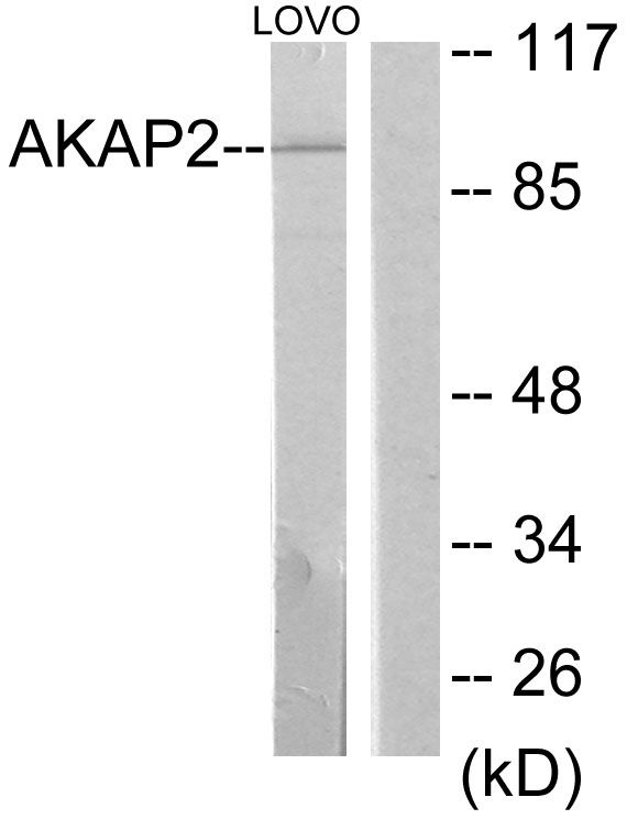 AKAP2 Antibody (PA5-38832) in Western Blot