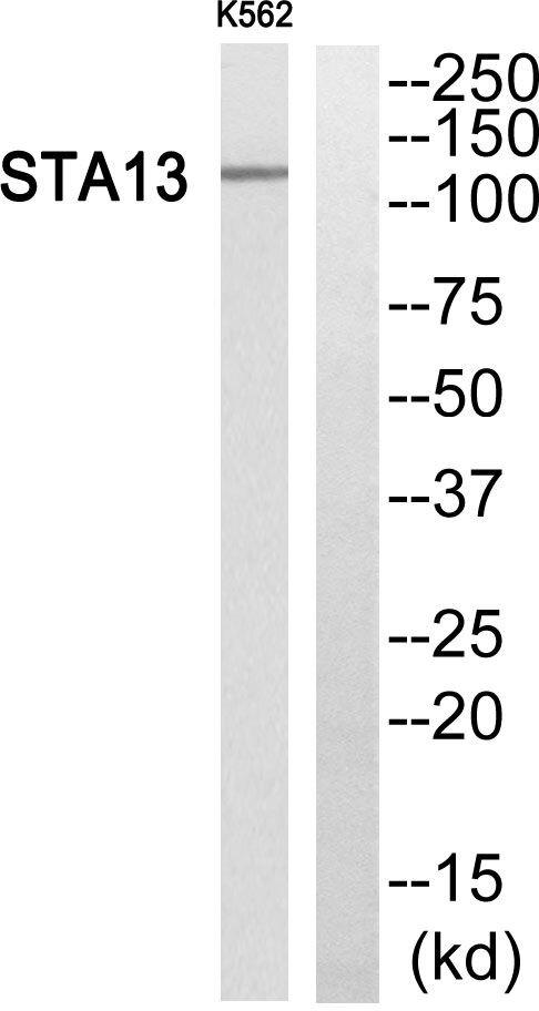 STARD13 Antibody (PA5-38834)