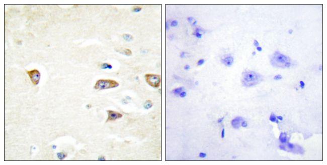 MRCK beta Antibody (PA5-38838) in Immunohistochemistry (Paraffin)