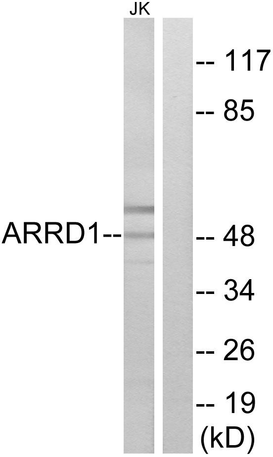 ARRDC1 Antibody (PA5-38848) in Western Blot