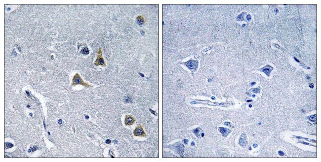 ARRDC2 Antibody (PA5-38850) in Immunohistochemistry (Paraffin)