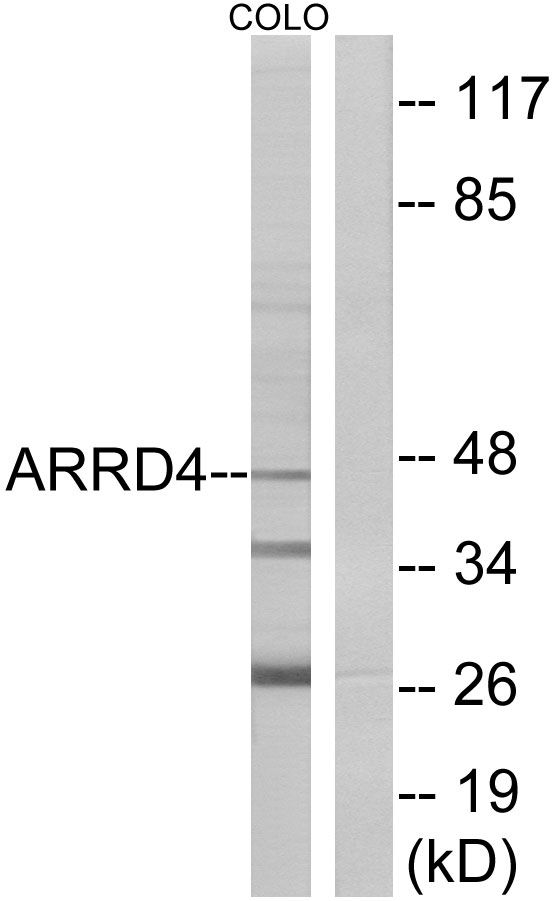 ARRDC4 Antibody (PA5-38852)