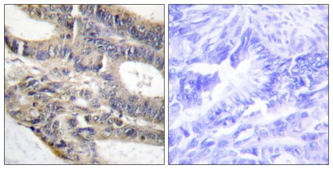 RALGAPA2 Antibody (PA5-38853) in Immunohistochemistry (Paraffin)