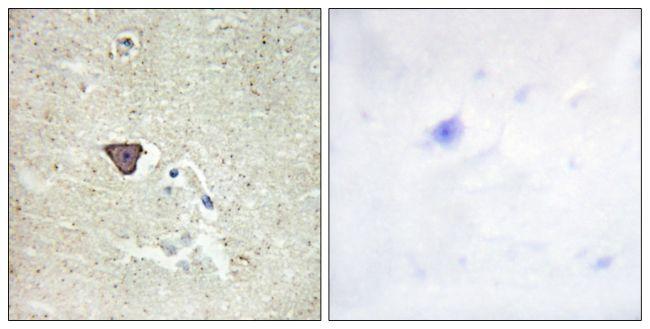 CDH9 Antibody (PA5-38860) in Immunohistochemistry (Paraffin)
