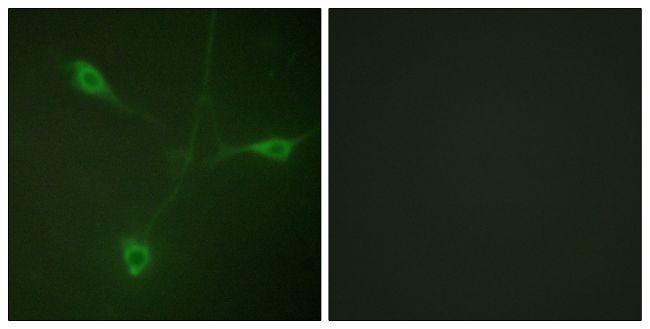 Phospho-HSP90 beta (Ser226) Antibody (PA5-38861)