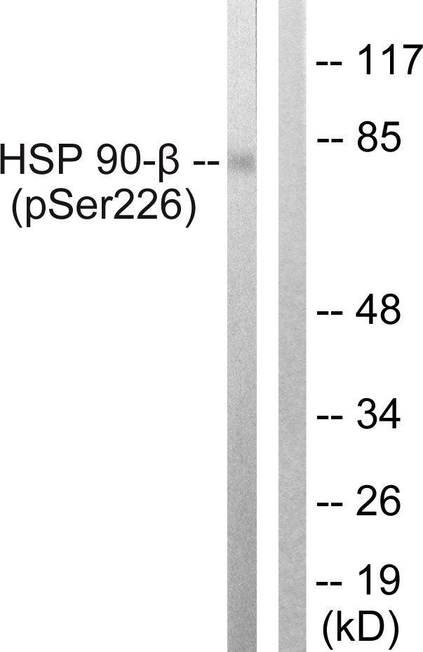 Phospho-HSP90 beta (Ser226) Antibody (PA5-38861) in Western Blot