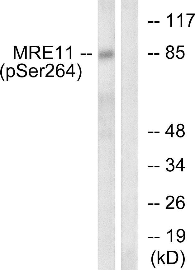 Phospho-MRE11 (Ser264) Antibody (PA5-38868)