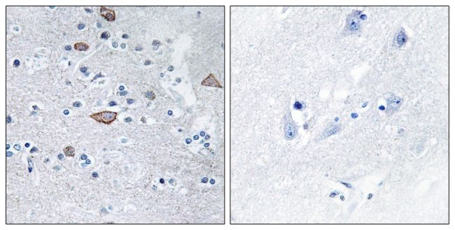 CEND Antibody (PA5-38870) in Immunohistochemistry (Paraffin)