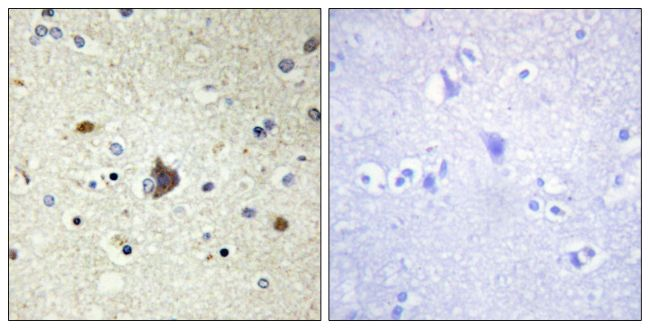 COL4A3 Antibody (PA5-38876) in Immunohistochemistry (Paraffin)