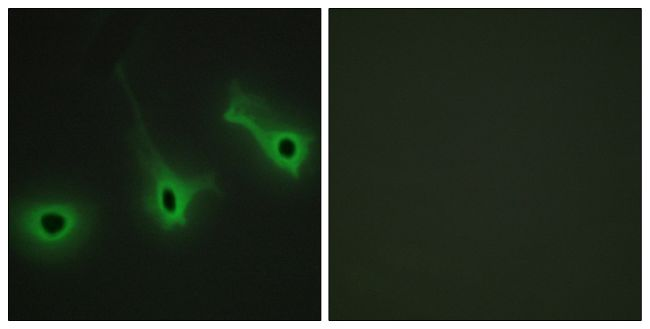 COL5A3 Antibody (PA5-38881) in Immunofluorescence