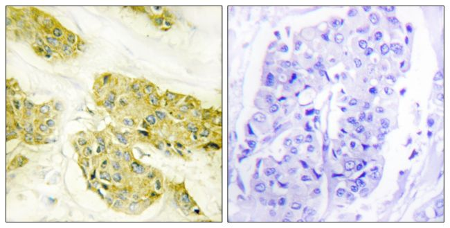 COL5A3 Antibody (PA5-38881) in Immunohistochemistry (Paraffin)