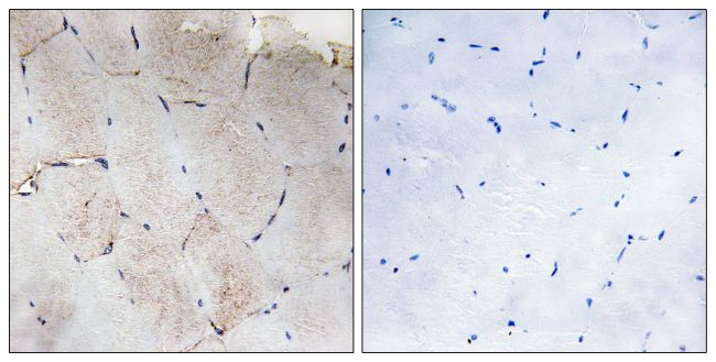 COL12A1 Antibody (PA5-38890) in Immunohistochemistry (Paraffin)