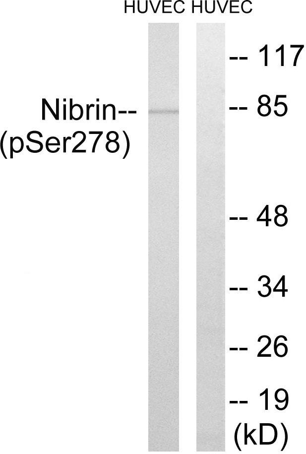 Phospho-NBS1 (Ser278) Antibody (PA5-38892) in Western Blot