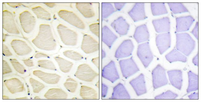 COL20A1 Antibody (PA5-38895) in Immunohistochemistry (Paraffin)