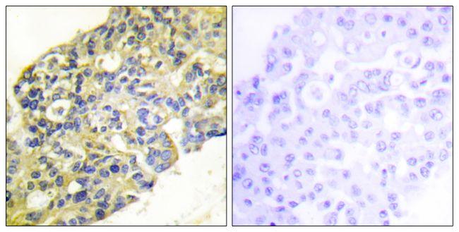PIK3R1 Antibody (PA5-38904) in Immunohistochemistry (Paraffin)