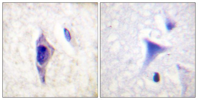 Phospho-PIK3R1 (Tyr607) Antibody (PA5-38905)