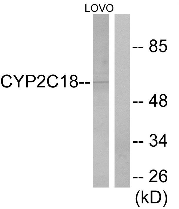 Cytochrome P450 Pan Antibody (PA5-38907) in Western Blot