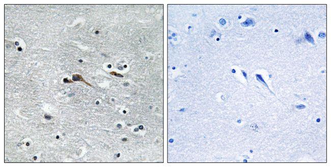 CYTL1 Antibody (PA5-38912) in Immunohistochemistry (Paraffin)