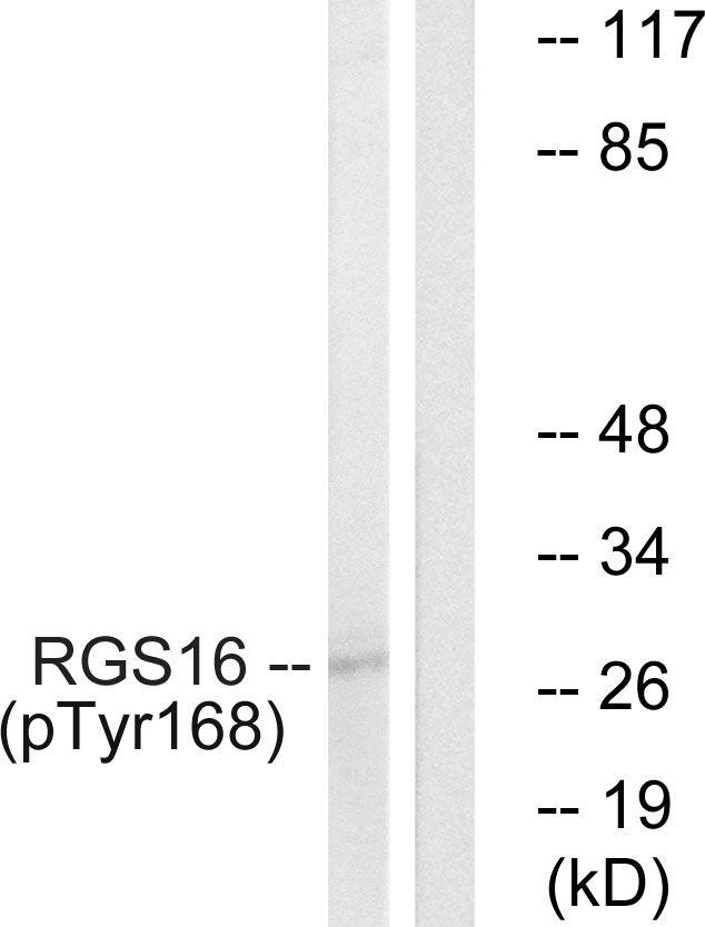 Phospho-RGS16 (Tyr168) Antibody (PA5-38913) in Western Blot