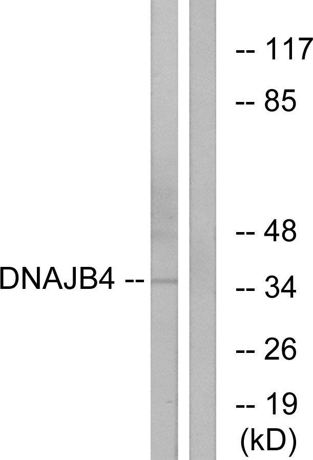 DNAJB4 Antibody (PA5-38915)