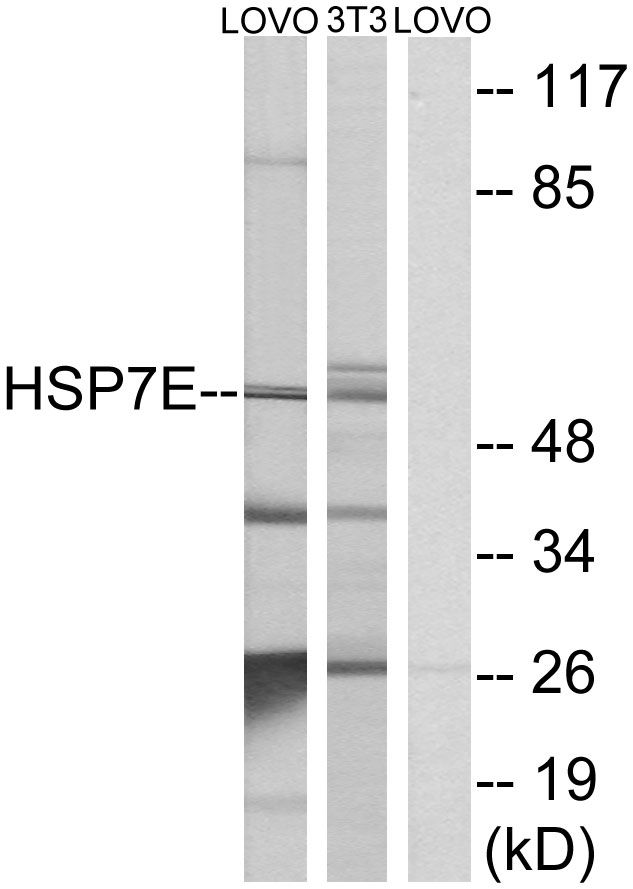 HSPA14 Antibody (PA5-38926)