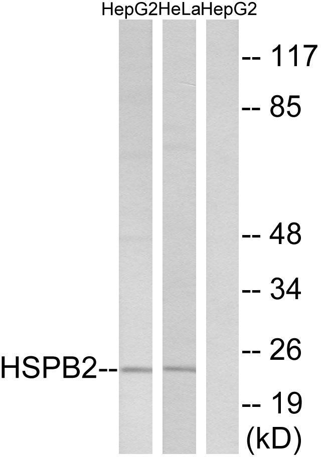 HSPB2 Antibody (PA5-38927) in Western Blot