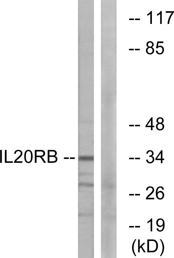 IL20RB Antibody (PA5-38930)