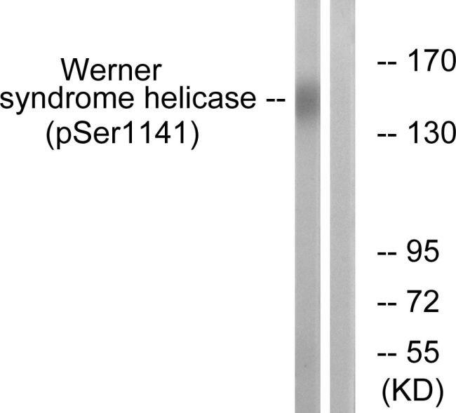 Phospho-WRN (Ser1141) Antibody (PA5-38932) in Western Blot