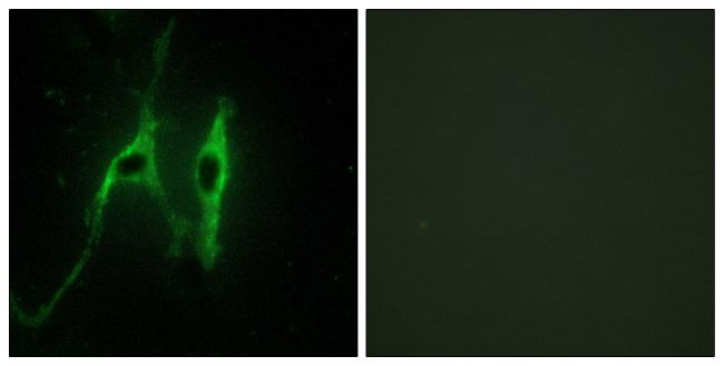 Cytochrome B5 Antibody (PA5-38934) in Immunofluorescence