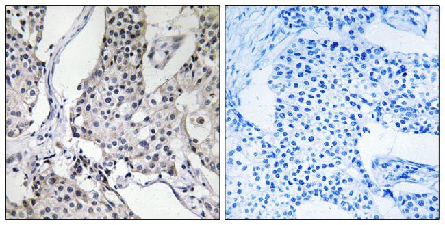 PHLDA3 Antibody (PA5-38942) in Immunohistochemistry (Paraffin)