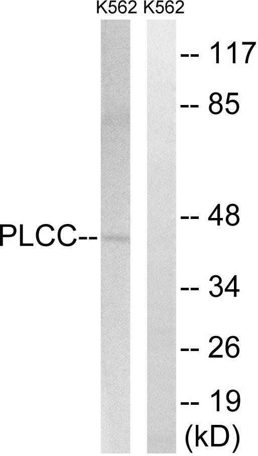 AGPAT3 Antibody (PA5-38946) in Western Blot