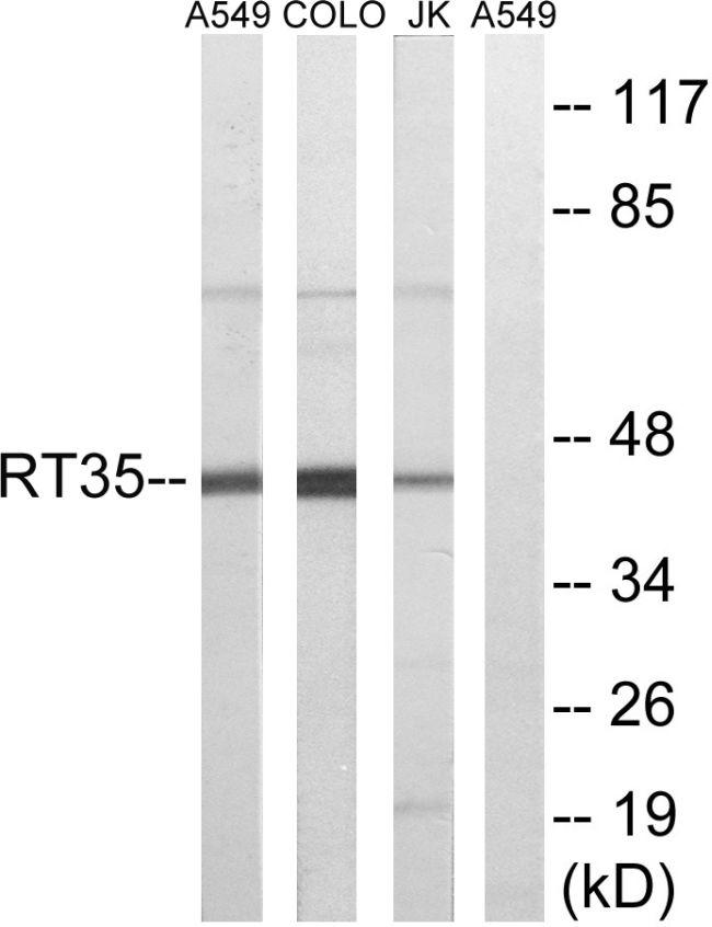 MRPS35 Antibody (PA5-38952)