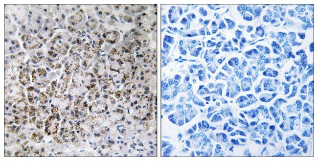 MRPL40 Antibody (PA5-38965) in Immunohistochemistry (Paraffin)