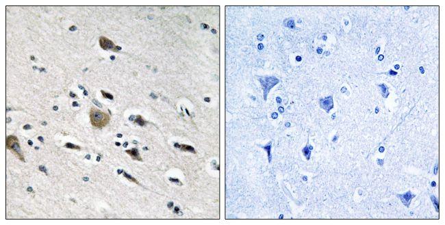 MRPL52 Antibody (PA5-38969) in Immunohistochemistry (Paraffin)