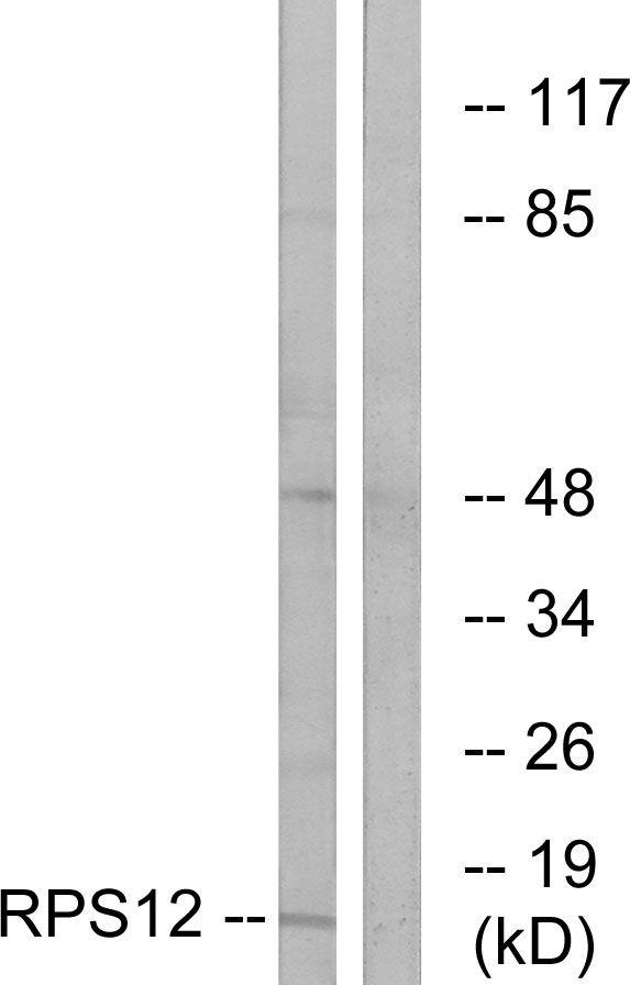 RPS12 Antibody (PA5-38970) in Western Blot
