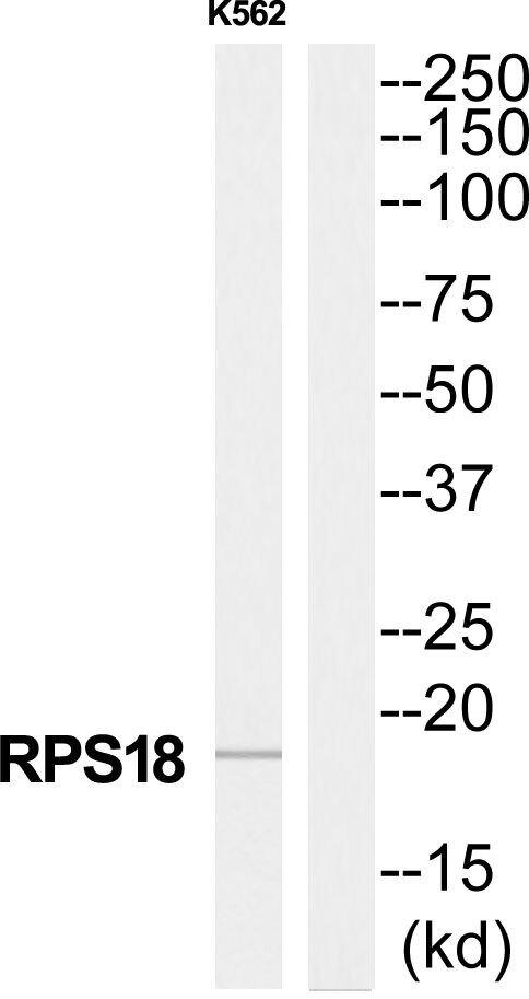 RPS18 Antibody (PA5-38971) in Western Blot