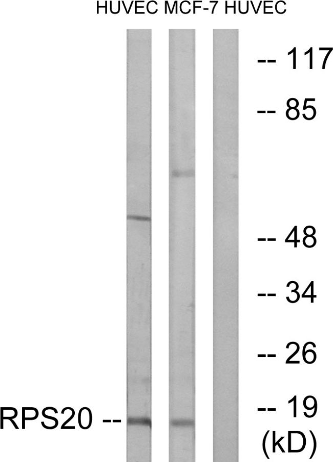 RPS20 Antibody (PA5-38972) in Western Blot