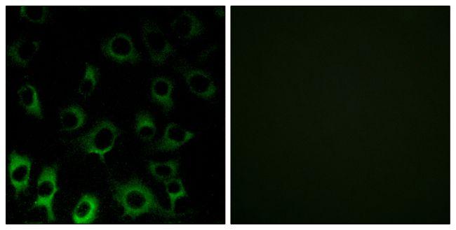 RPS4X Antibody (PA5-38975)